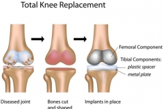 joint-knee
